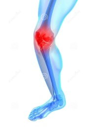 painful-knee-illustration-14526284